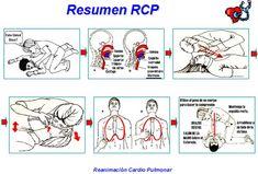 Resumen de Resucitacion Cardio Pulmonar