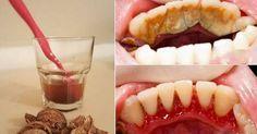 Come rimuovere il tartaro e la placca senza recarsi dal dentista: i migliori 3 rimedi naturali per mantenere i tuoi denti in salute e combattere la carie.