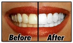 Who doesn't want to have beautiful white teeth ? Here is a nice and easy idea for whitening your teeth at home, it's a natural way with 2 ingredients: Teeth Whitening Remedies, Natural Teeth Whitening, Beauty Care, Diy Beauty, Beauty Hacks, Fashion Beauty, Get Whiter Teeth, Teeth Care, Tips & Tricks