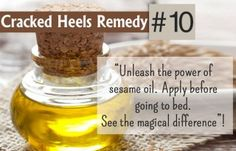 Apply sesame oil on your heels and any cracked parts each night before going to bed. This is a great cracked heels solution for feet. Massage well till it mixes in the skin.