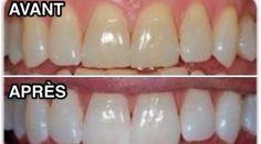 Vous avez envie d'avoir de belles dents blanches rapidement ? Voici un truc que m'a révélé mon dentiste qui va rendre vos dents blanches en un rien de temps ! Ne vous inquiétez pas, pas besoin ...
