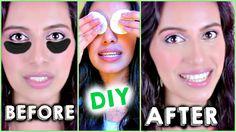 DIY How to Get Rid of DARK CIRCLES under eyes FAST using Potatoes! {DIY}...