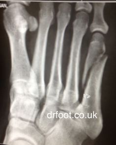 8 weeks post injury, fracture of the 5th metatarsals. May require surgical intervention with screw fixation.