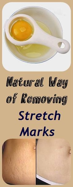 Stretch marks are a form of scarring on the skin which are streaks with either purple, red and pink color. They are caused by tearing of the dermis; and this may reduce over time but will not disappear completely. Effects: As you get stretch marks, the collagen is weakened and its normal production cycle is interrupted …