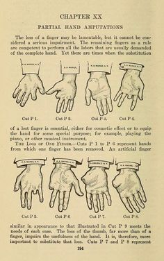 """Chapter XX. Partial hand amputations. """"The loss of a finger may be lamentable, but it cannot be considered a serious impairment."""" Manual of artificial limbs. 1914."""