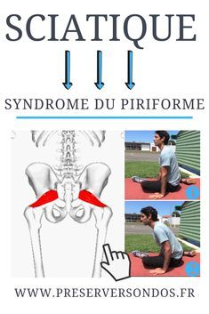 Syndrome Pyramidal, Muscle Piriforme, Piriformis Syndrome, Physique, Massage, Fitness, Workout, Sports, Motivation