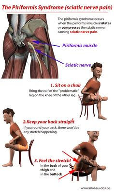 The piriformis syndrome is a condition that occurs when the piriformis muscle irritates or compresses the sciatic nerve causing sciatic nerver pain. Here's how to stretch the piriformis muscle (including video) to get sciatic nerve pain relief. Sciatica Stretches, Sciatica Pain Relief, Sciatic Pain, Muscle Pain Relief, Piriformis Exercises, Sciatica Pillow, Low Back Pain Relief, Flexibility Stretches, Scoliosis Exercises