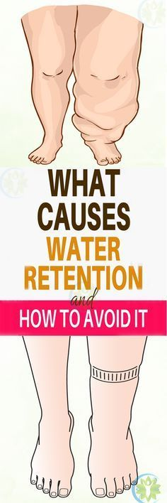 "Those ""extra pounds"" you're carrying around could actually just be water weight! Here's how to reverse water retention and get rid of that puffy feeling for good."