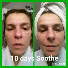 I love how Soothe really helps people with sensitive skin! That smile in the after shot says it all!! Rosacea defeated!! Confidence returned!!
