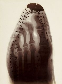 X-ray plate of a foot inside a boot by Ernest Payne