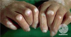 scleroderma | localisation: handsdiagnosis: Progressive Systemic Scleroderma