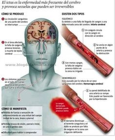 For my Spanish speaking patients! Istanbul New Airport, Brain Facts, Med Student, Never Stop Learning, Acv, How To Speak Spanish, Neuroscience, Healthy Tips, Health Fitness