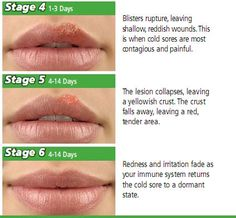 How To Get Rid Of A Cold Sore Scab Overnight Thebeautymania Net