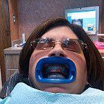 Whitening Your Teeth Top Local Dental Procedures Teeth Whitening Methods, Perfect Teeth, Porcelain Veneers, Dental Procedures, Cosmetic Dentistry, White Teeth, Dental Implants, Your Smile, Movie Stars