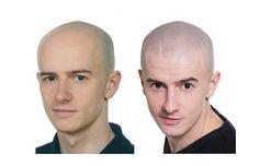 mikropigmentacja skóry głowy Wygraj walkę z łysieniem i odejmij sobie lat
