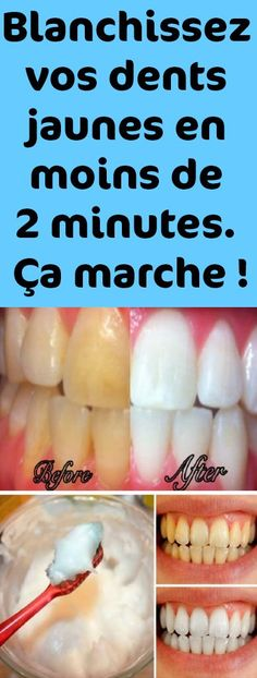 Bleach your yellow teeth in less than 2 minutes. Oral Health, Dental Health, Dental Care, Health And Wellness, Health Fitness, Health Care, Oral Hygiene, Teeth Whitening, Food Videos