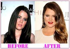 Khloe Kardashian Plastic Surgery Before And After Khloe Kardashian Plastic Surgery #KhloeKardashianplasticsurgery #KhloeKardashian   #aerobiker