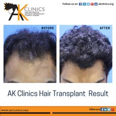 Hair transplant results can sometimes be surprising ...though we don't aim at natural densities but the texture and characteristics of donor hair can give results almost as good as natural. Presenting a nice result of patient..undetectable surgical procedure... #HairTransplantResult #Hairloss #Hairrestoration #HairCare #FUEIndia #beforeandafter #Hairgoals #Hairtreatment #HairLossForum #Regrowhair #Daysurgery #hairreplacement #HairTransplantPatient #HairGrowth #Hairline #HairTransplantClinics Hair Transplant In India, Hair Transplant Results, Regrow Hair, Lip Fillers, Hair Restoration, Hairline, Hair Loss, Hair Growth, Hair Care