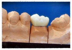 PFM dental crown
