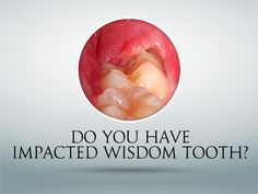 If the wisdom teeth are impacted and embedded in the bone, the oral surgeon will put an incision into the gums and remove the tooth or teeth in sections in order to minimize the amount of bone being removed.