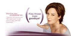 Juvederm XC! - kiss those lines goodbye