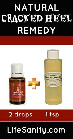 Natural cracked heel remedy. For more info and to order please go to www.EssentialOilsEnhanceHealth.com