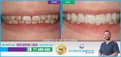 Congratulations Fatima on your new Smile! Thank You Dr Elie GEMAA! Thank You Smile Creators TEAM! 71-680660 #WeCreateYourHollywoodSmile http://youtube.com/smilecreatorslb http://smilecreators-lb.com/before-after https://www.facebook.com/SmileCreators/ http://www.cosmeticdentistrybeirut.com/ http://www.smilebeirut.com/ http://www.veneers-beirut.com/  #HollywoodSmile #EmaxVeneers #PreplessVeneers #Lebanon #DentalClinic #Dentist #Laser #GummySmile #Beirut