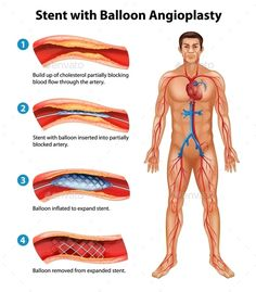 Buy Stent Angioplasty Procedure by BlueRingMedia on GraphicRiver. A stent angioplasty procedure Improve Leg Circulation, High Blood Pressure Medication, Natural Remedies For Uti, Heart Disease Symptoms, Interventional Radiology, How To Handle Stress, Heart Anatomy, Vascular Disease, Bypass Surgery