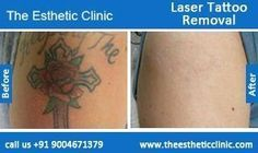 Laser Tattoo Removal, Permanent Tattoo Removal Treatment Before After Photos in Mumbai, India For more information visit http://www.theestheticclinic.com/skin/dermatology/laser-treatment-tattoo-removal.html #KidsTattooRemoval
