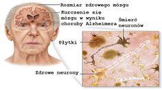 Choroba Alzheimera – jak jej zapobiegać?
