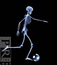 caveira ☆ #esqueleto * raio x #tênis *   #caveiras   pinterest, Skeleton