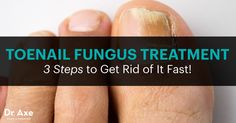 Here are the exact steps of how to get rid of toenail fungus naturally. This toenail fungus treatment includes diet, supplements and essential oils.