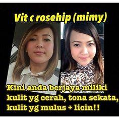 Whatsapp 0147378131  cantik kan.. hasil consume #Vitcrosehip mimy.. mmg best!! . Masih ragu2?? Dah beribu testimoni berjaya dgn vit c rosehip .. . Jom cuba! Sebotol Rm60 (30 biji) . . #syjualmurah #Vitcrosehip #butikvendor #bazarpaknilprodukkecantikkan #lokalah #bruneidarussalam #malaysianig #malaypretty #spa #facial #treatment #skin #love #beautiful #kulitcantikgebu #tagsforlike #swag #instagallive #instalove #Regrann by mimy_beautyshop