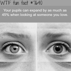 My eyes usually look like the eye on the right