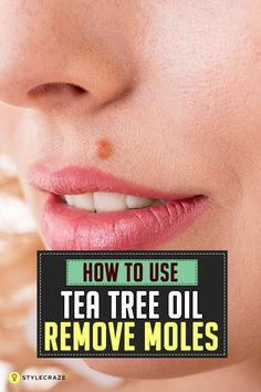 How To Use Tea Tree Oil To Remove Moles?