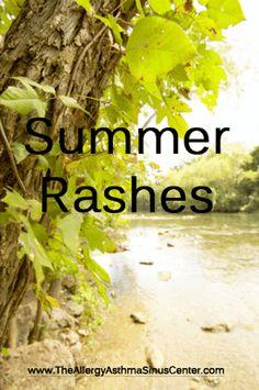 Summer rashes poison ivy heat rash sun rash the allergy asthma