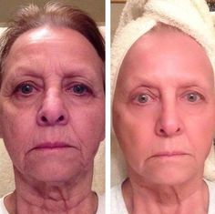 Face Acupressure Techniques: How Do Face Tautening Workouts Really Work For A Holistic Facelift?