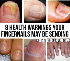 8 Health WARNINGS Your Fingernails May Be Sending body mind soul spirit