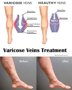 Varicose Veins Treatment Monarch Medi Spa 5111 Sauk Trail, Suite B Richton Park, Illinois 60471 (708) 248-7902