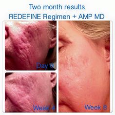 Are you ready to change the way that your skin is aging? Rodan + Fields is changing skin, changing lives! Please let me help make it happen for you or your loved one! KZugg.myrandf.com