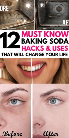 12 Genius Baking Soda Cleaning Hacks You NEED TO TRY. Clean everything from your bathroom, kitchen, Baking Soda Cleaner, Baking Soda Water, Baking Soda Vinegar, Baking Soda Shampoo, Cider Vinegar, Baking Soda Beauty Uses, Baking Soda Uses, Cleaning With Baking Soda, Diy Beauty Hacks