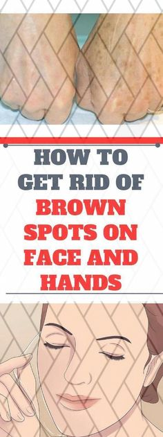 How you can Clear away Dim Spots From Face Within two Days #BrownSpotsOnSkin