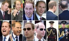 During his tour of the Far East, Prince William was pictured with a bald patch bearing a striking resemblance to his Uncle Edward.