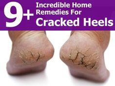 9 Incredible Home Remedies To Help Cracked Heels | DIY Tag