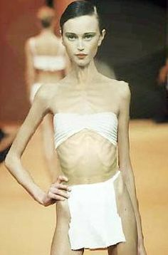 Ana Carolina Reston shortly before her death from anorexia,,,OMG and the fashion industry let her walk the catwalk???