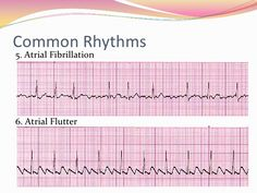 12 Lead EKG Interpretation AFIB AFLUTTER Reading EKG/ECG