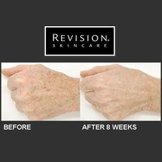 Revision Skincare Lumiquin fades dark spots, diminishes wrinkles and plumps skin for more youthful hands. Look at these great results after just eight weeks! Skin Tightening Cream, Skin Firming, Skin Care Cream, Skin Cream, Revision Skincare, Skin Specialist, Moisturizer With Spf, Homemade Skin Care, Combination Skin