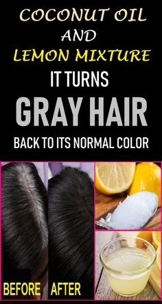 grey hair remedies Your hair can become grey because of several reasons. Here are the top 15 natural home remedies for grey hair treatment with images which are definitely help to you. Grey Hair Remedies, Natural Remedies, Natural Hair Treatments, Homemade Hair Treatments, Hair Loss Remedies, Shampoo Herbal Essences, Natural Hair Care, Natural Hair Styles, Natural Oil