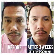10 Best R F For Men Images Rodan And Fields Rodan Life