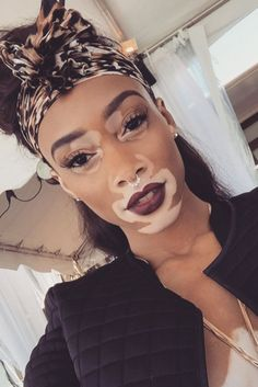 Model Winnie Harlow Says Fan Tributes Are Not Blackface